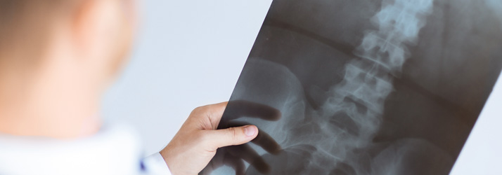 Scoliosis Solutions Victoria BC Services and Techniques